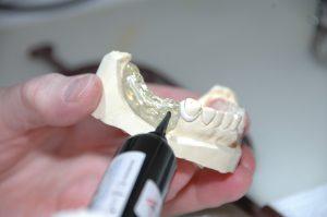 Cómo puedo colocarme una protesis dental sin metal-PIXA